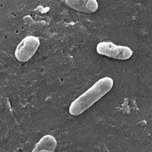 Bordetella pertussis toxin