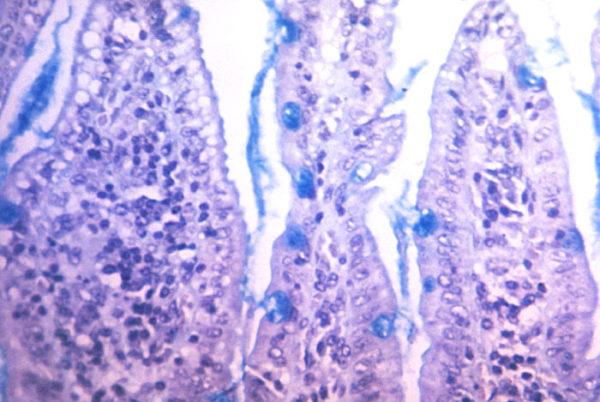 Cholera Toxin Subunit B