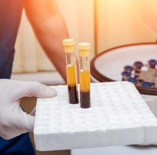 Yellow Fever Virus Donor