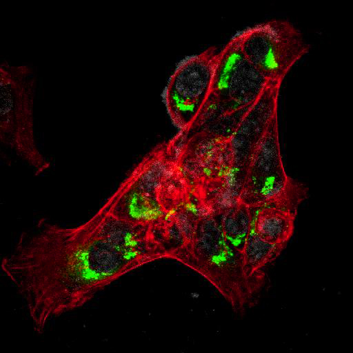 New Immunofluorescence Data for our CMV, Yellow Fever and Ebola Antibodies
