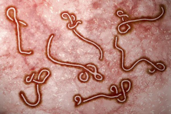 Ebola GP1 mucin-like region